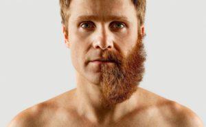 Лазерна епіляція вусів у чоловіків